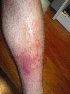 Cellulitis on the leg (picture from Wikipedia)